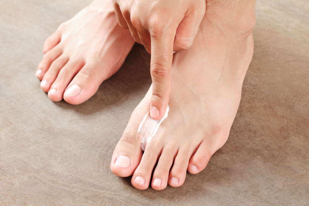 Tea tree For Athlete's foot and toe fungus